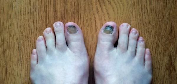 stopy do przebadania